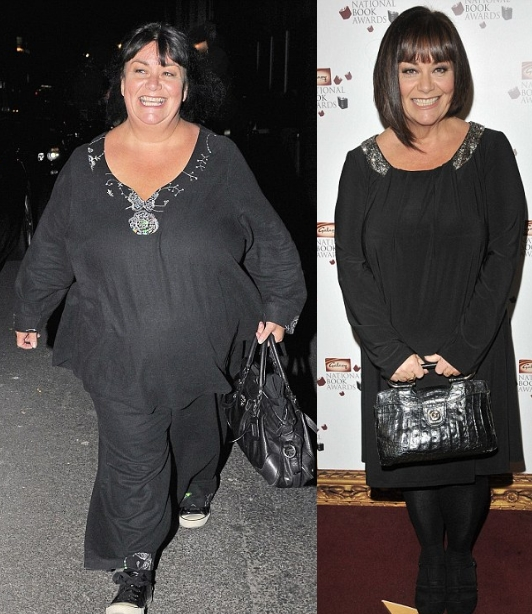 Dawn French Weight Loss Extreme Dieting – A ...